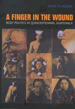 A Finger in the Wound by Diane M. Nelson