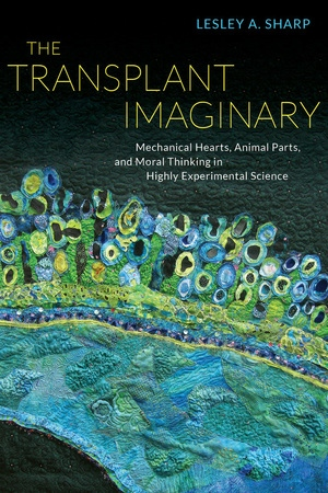 The Transplant Imaginary by Lesley A. Sharp